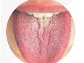 裂舌(裂口女)