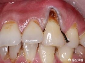 牙缝黑怎么办(牙齿缝隙黑了怎么办)
