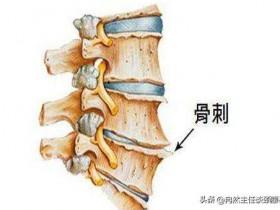 骨质增生怎么治疗好(骨质增生怎么治疗能根除)